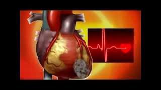 Инфаркт миокарда. Первые признаки.