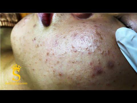Surprise When Hidden Acne Is Removed | Loại Bỏ Mụn Ẩn Đúng Cách - SacDepSpa#122
