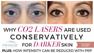 CO2 Lasers Should be Used Conservatively on Dark Skin, and Usually Takes More than One Treatment