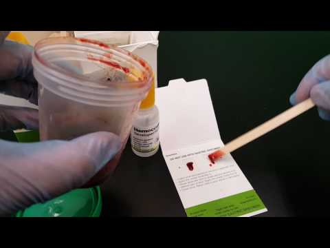 Microbiology: Fecal Occult Blood