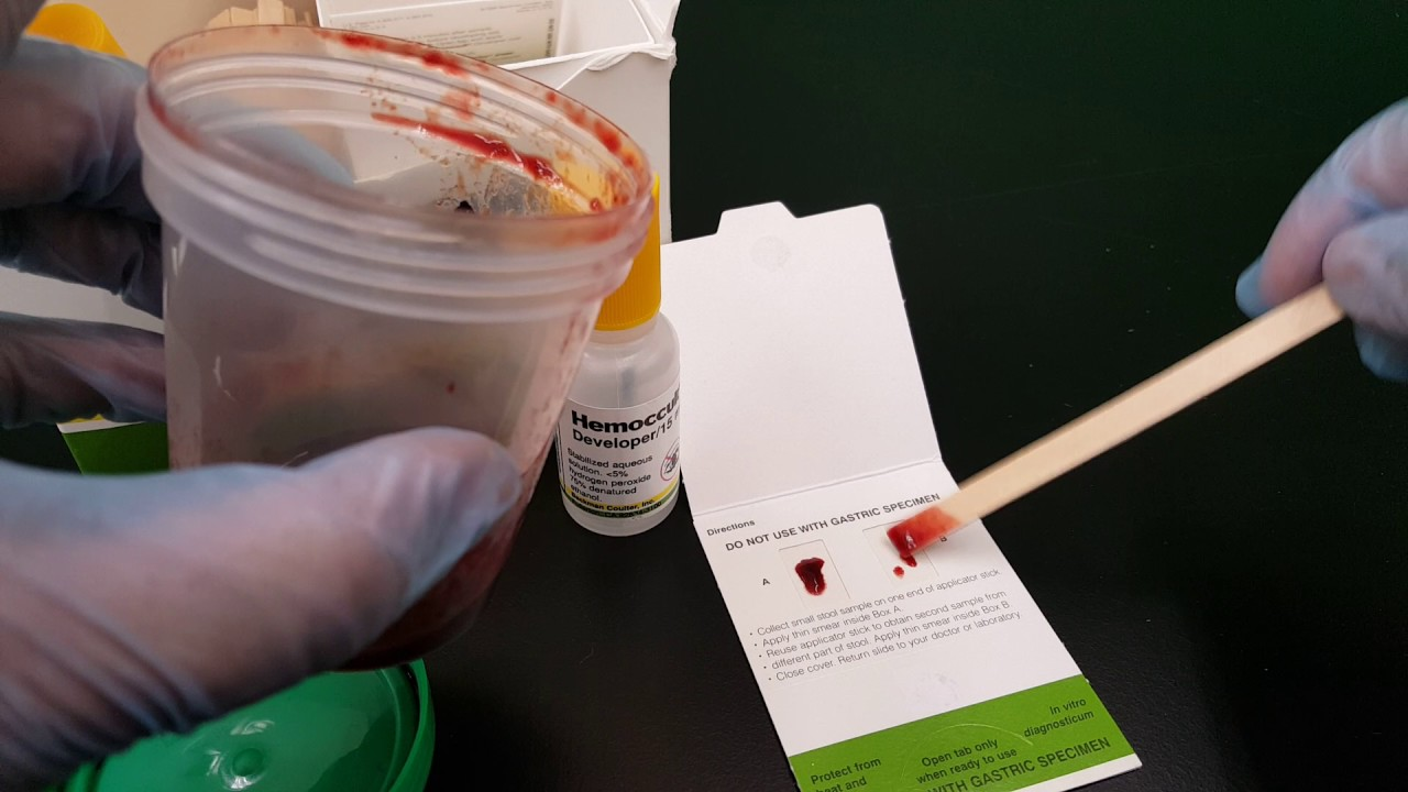 Microbiology: Fecal Occult Blood - YouTube