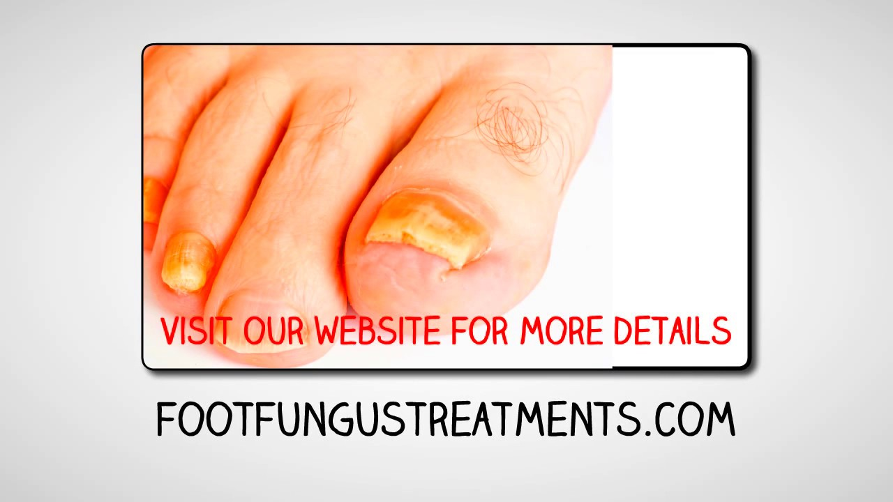 Home Remedies For Fungal Toe Nail Infection Youtube
