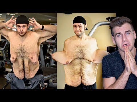 Meet The Man Who Has Uncontrollable Amount Of Loose Skin