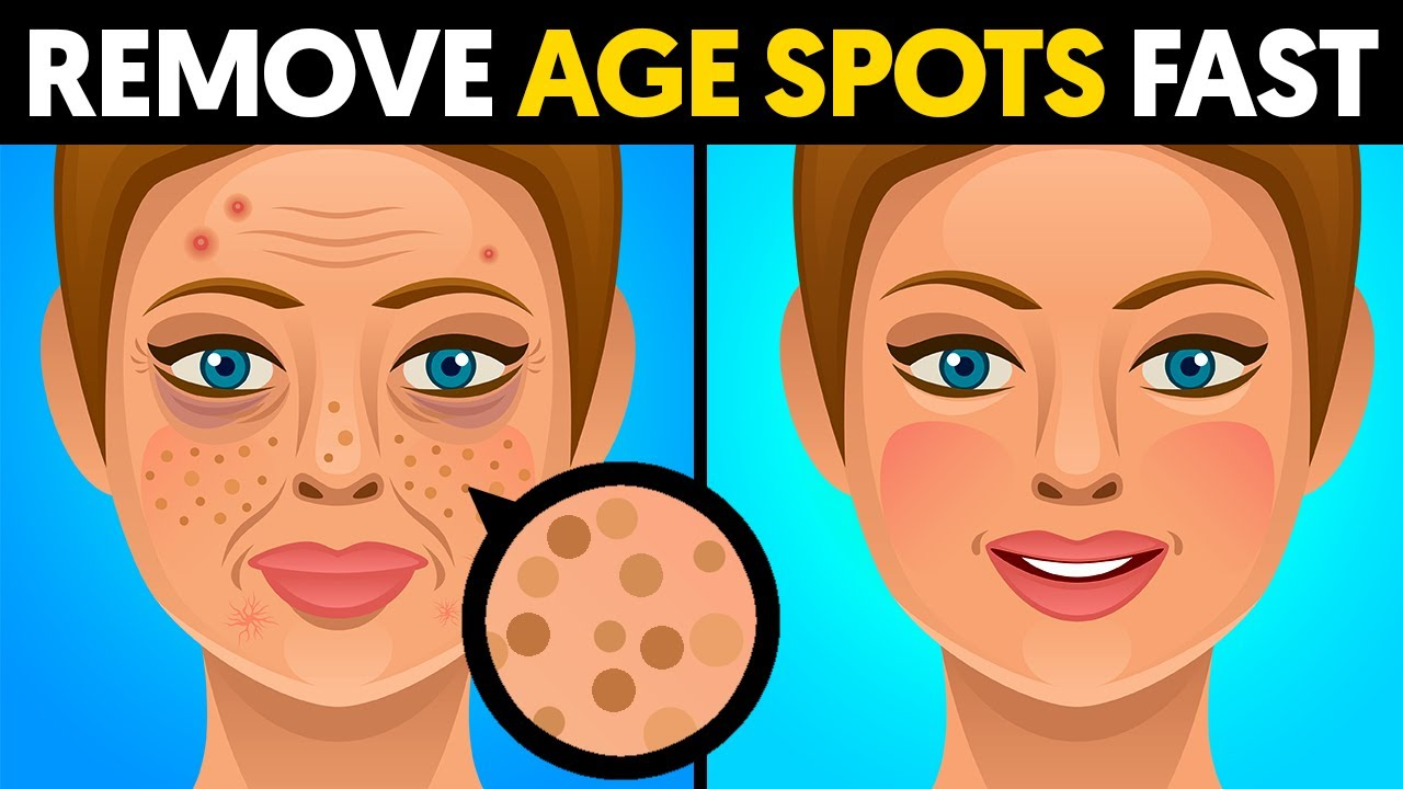 The quickest way to remove age spots