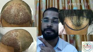 Cheap and Best Hair Transplant Result in Rs 10 per Graft - Authentic Clinic in Mumbai For Hair