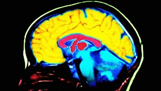 Study Finds This Key Difference In Conservative Brains thumbnail
