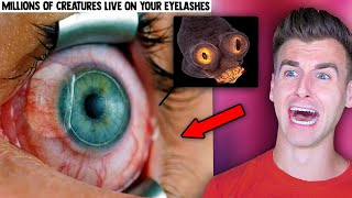 Terrifying Things You Didn't Need To Know Thanks To Microscopes