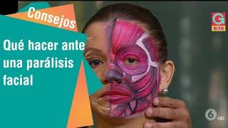 Facial nervio inflamacion tratamiento del