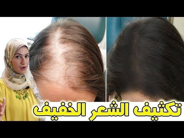 وصفة الحنة لتكثيف الشعر الخفيف و ملئ الفراغات و زيادة الشعر من الأمام Youtube