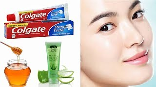 Apply Toothpaste With Aloe Vera gel and See Magical Result Within 15 minutes