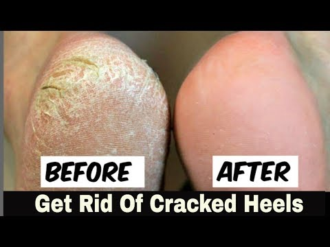 "Home Remedy to Remove Cracked Heels Fast ""OVERNIGHT"" - Great Results"