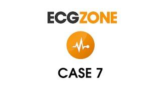 ECG Case 7 - Palpitations