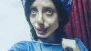 Sahar tabar did 50 surguries to look like angelina jolie