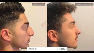 Rhinoplasty Before After for man - 9 Months Result - Ozge Ergun MD, Aesthetic Plastic Surgeon