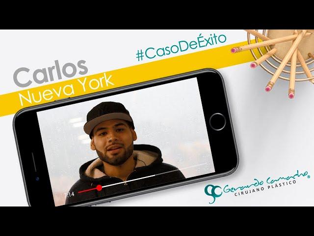 Corrección de Ginecomastia - Cirugia Plastica Masculina  Bogota - Colombia