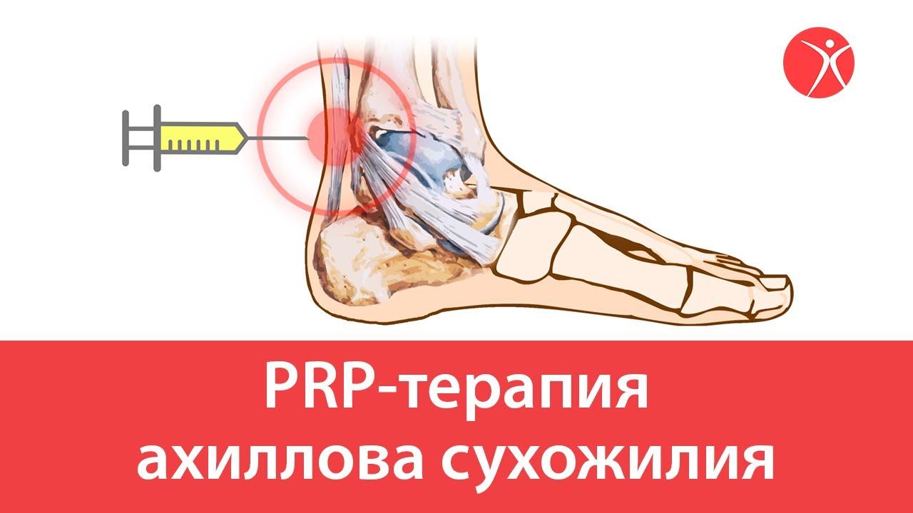PRP-терапия ахиллова сустава
