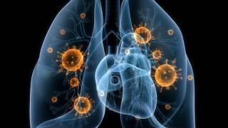 Воспаление лёгких у собаки.Вылечили от пневмонии и сердечных червей.Ветеринарное ранчо