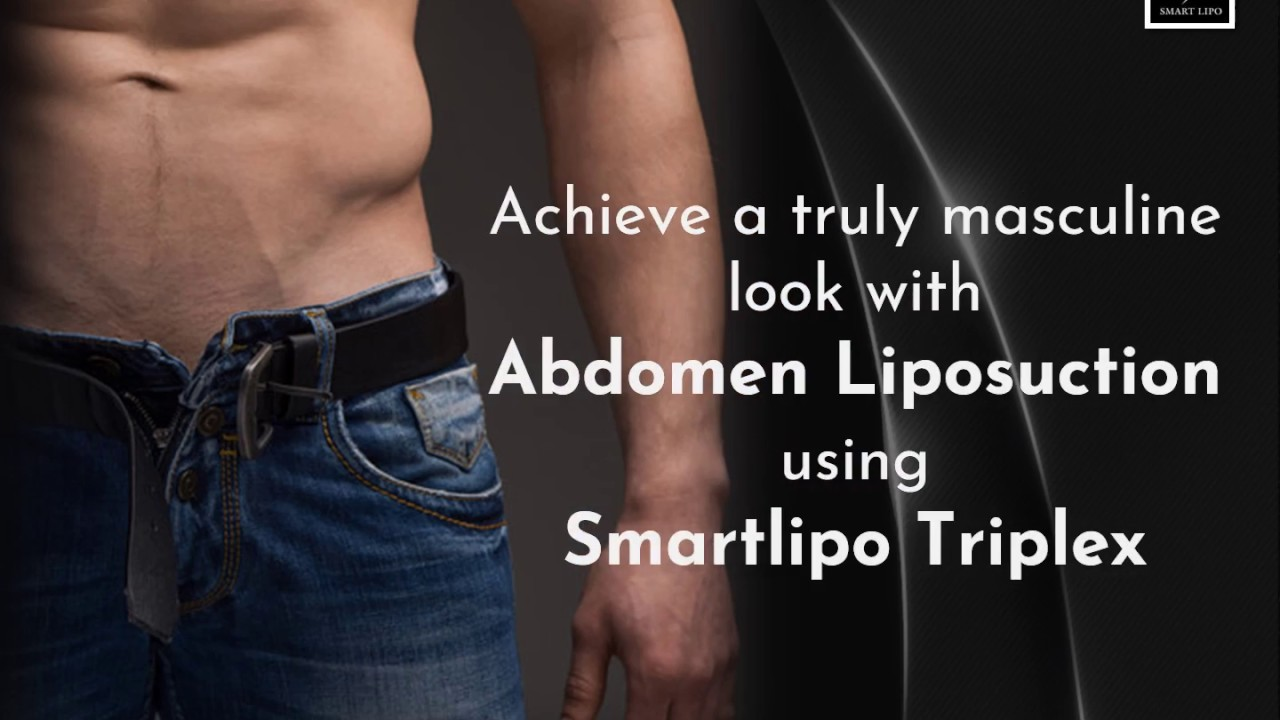 Male Abdomen Liposuction by Park Avenue Smart Lipo, Manhattan, New York  [Before and After]