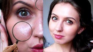 видео Жирная кожа – 7 способов сделать лицо матовым