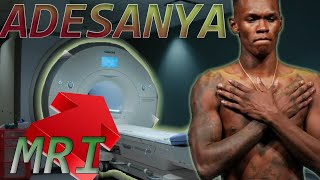 Adesanya Reveals he is getting a MRI for his Gynecomastia: Doctor reacts