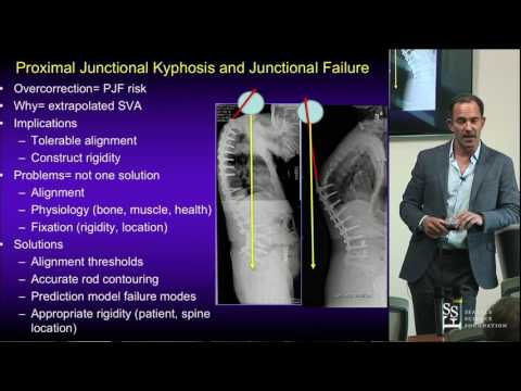 Pre-Operative Planning for Adult Spinal Deformity Surgery - Shay Bess, MD