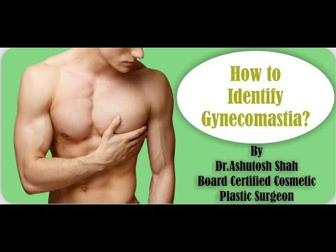 How to Identify Gynecomastia, Gynecomastia Information by Dr. Ashutosh Shah, Surat, Gujarat, India.