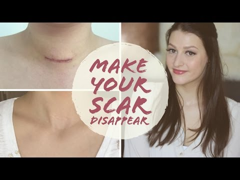HOW TO FADE SURGERY SCARS | Thyroidectomy | Scar Care | Graves' Disease