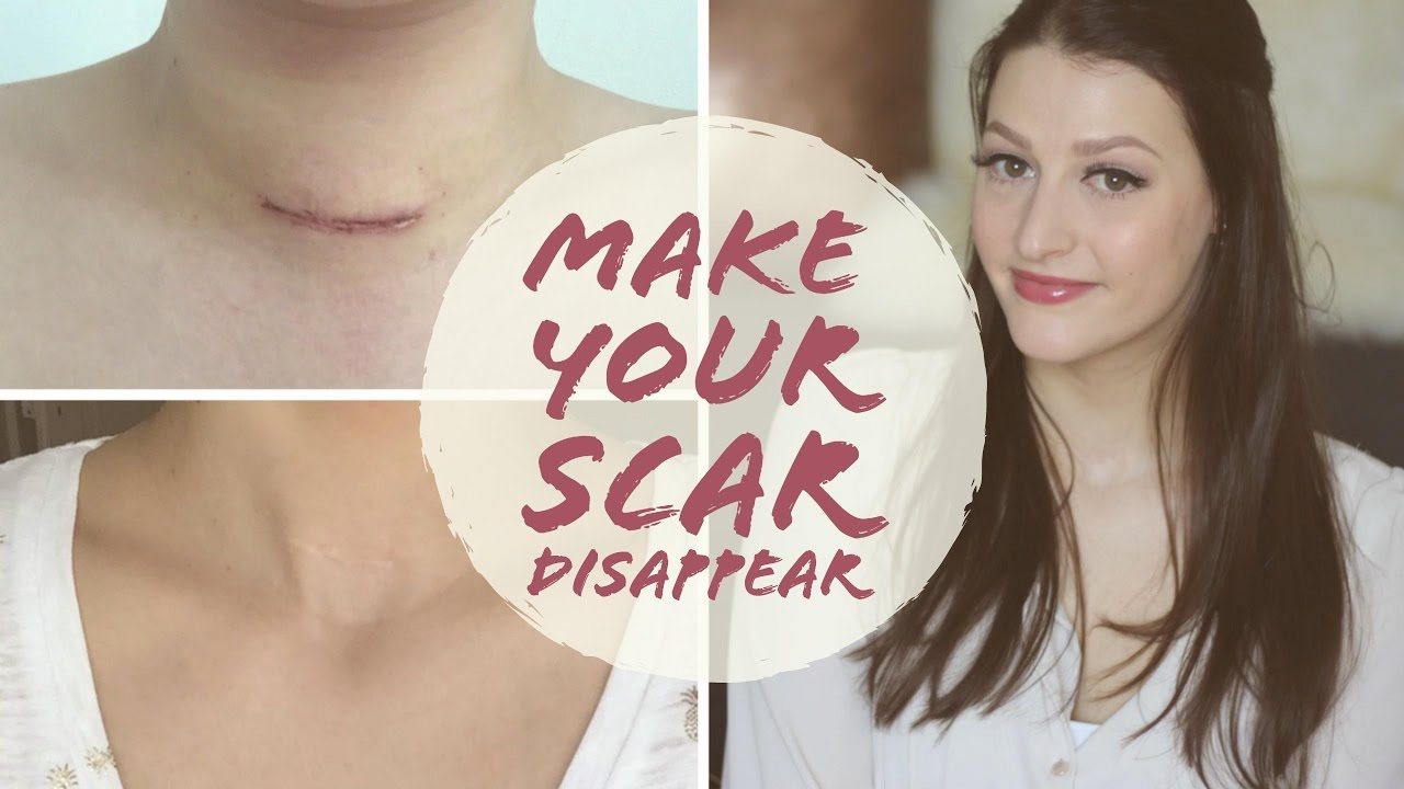 How To Fade Surgery Scars Thyroidectomy Scar Care Graves