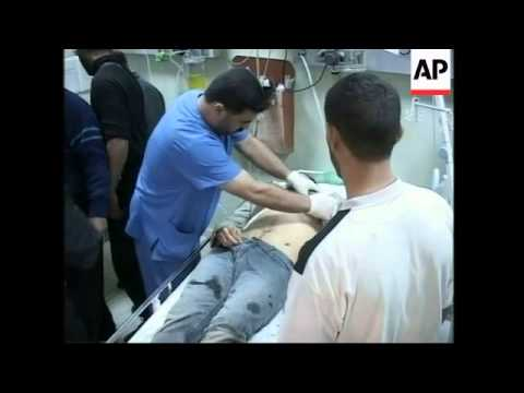 Hospital scenes after airstrike in Gaza