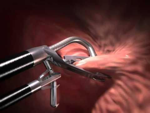 ROSE procedure - bariatric surgery revision