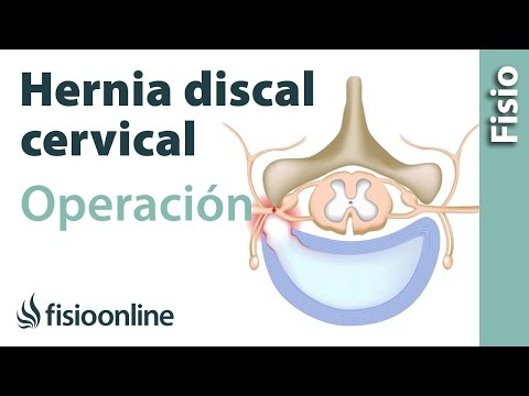 Hernia discal cervical. Operación quirúrgica o cirugía.