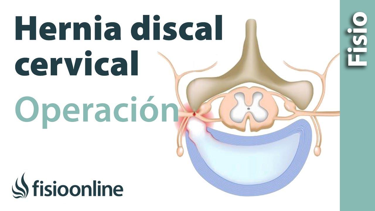 operacion hernia discal costo