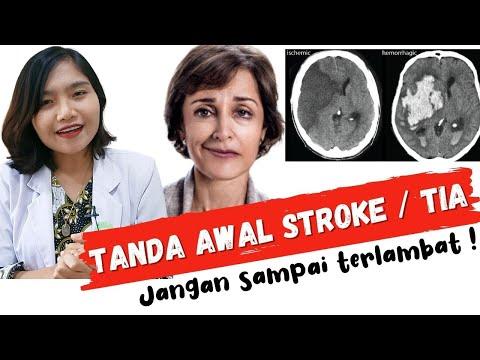 Cara PijatCara PijatTanganCara PijatCara PijatTanganyang Seing Kebas / Gejala Stroke Jika Saudaraku .
