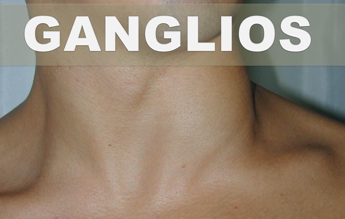 ☞ Remedios caseros para los ganglios linfáticos inflamados–Como ...