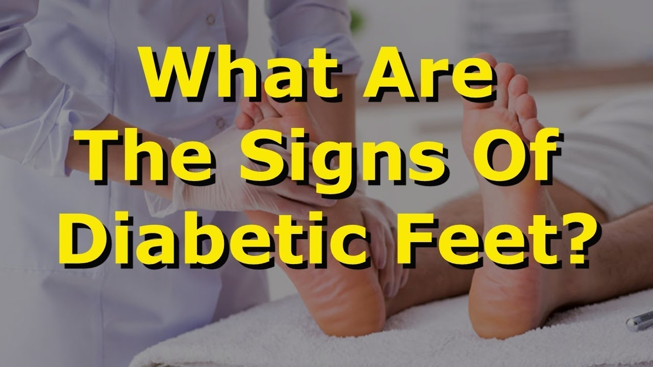 What Are The Signs Of Diabetic Feet Youtube