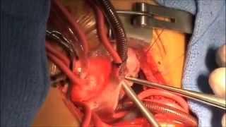 VSD Repair, Perimembranous Ventricular Septal Defect
