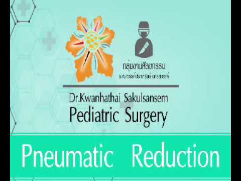 A SAFE TECHNIQUE FOR PNEUMATIC REDUCTION OF INTUSSUSCEPTION IN CHILDREN