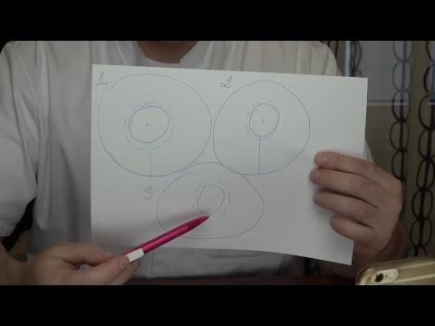 Подтяжка груди. Обзор операции и ответы на вопросы, часть 1