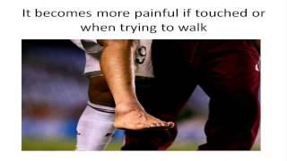 Signs You have a Broken Foot or a Broken Bone in Foot
