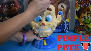 Pimple Pete Game Set Up Instructions And Demonstration