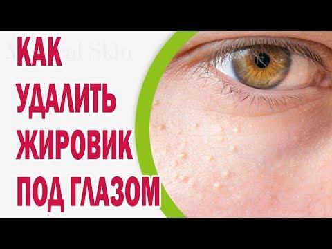 Как удалить жировик под глазом