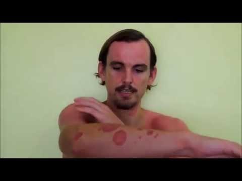 Cure Guttate Psoriasis Naturally - Heal Psoriasis