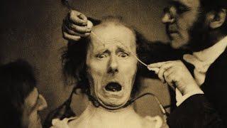 Eski Akıl Hastanelerinden Korkunç Görüntüler Ve Bazı Yöntemler