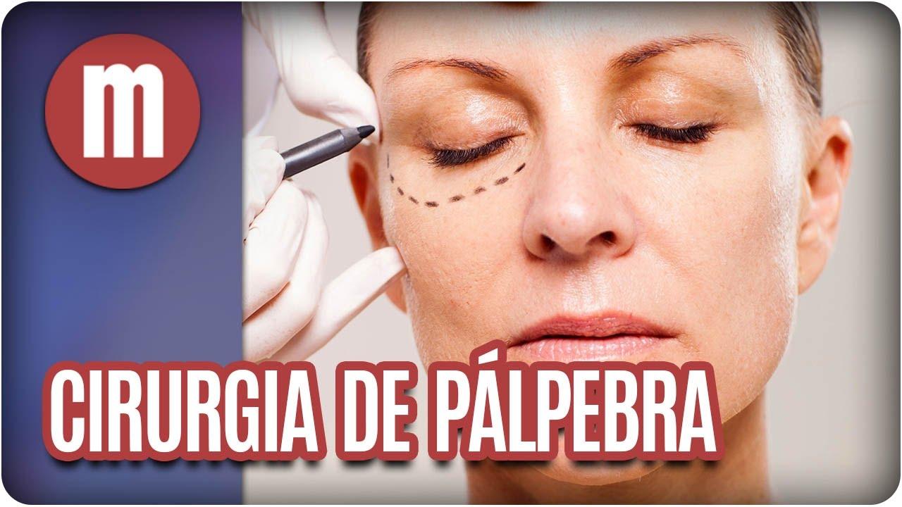 2c7d1609c Cirurgia da pálpebra - Mulheres (03 05 17) - YouTube