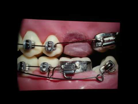 Orthodontics: Real sure way to upright nearly any tooth