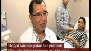 Çiple Tüp Bebek Tedavisi - Dr. Bülent Tıraş - NTV Haber