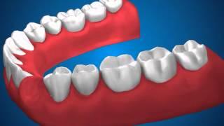 Ортопедическая стоматология   Мостовидные протезы(, 2013-01-14T04:58:39.000Z)