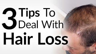 3 Hair Loss Treatment Options   Attract Women While BALDING   Increase Confidence With Thinning Hair