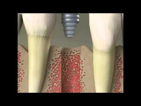 Type of Dental Implants  - Burwood Dental Specialists