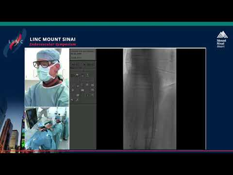 Live Case Presentation #1 CALCIFIED ILIAC Broadcast From University Hospital, Leipzig, Germany